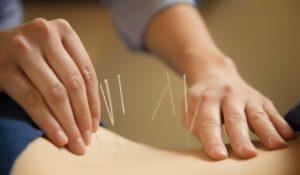 acupuncture-pour-maigrir